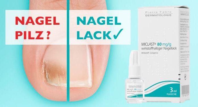 miclast nagellack erfahrungen test